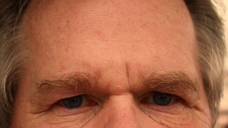 forehead-65059